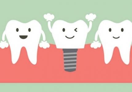 Dantų implantacija. Procedūros eiga.