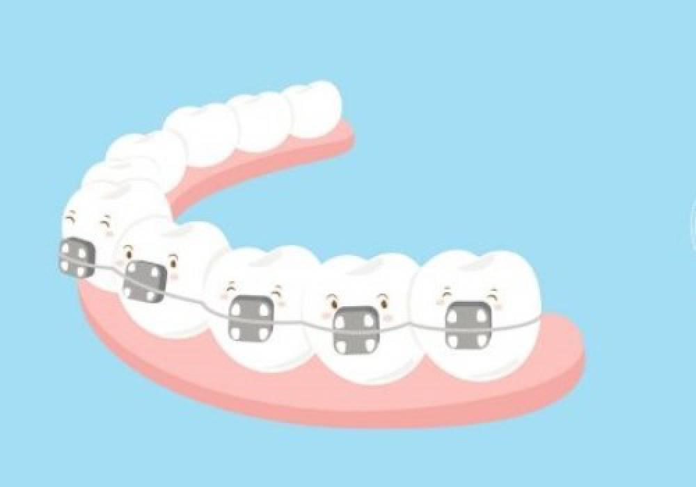 Ką pasirinkti: dantų tiesinimą breketais ar INVISALIGN kapomis?