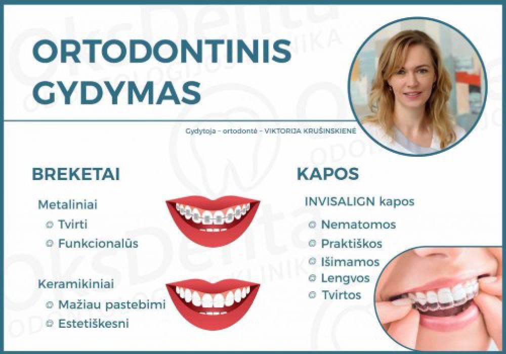 Ortodontinis gydymas. Dantų tiesinimo būdai ir svarba.