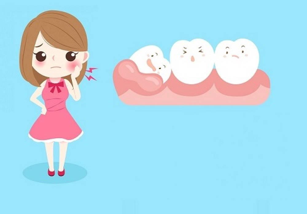 Protiniai dantys. Kada protinius dantis reikia šalinti?