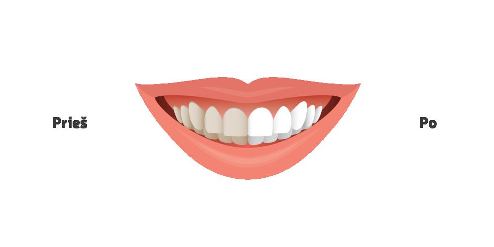 Dantų balinimas - Oksdenta
