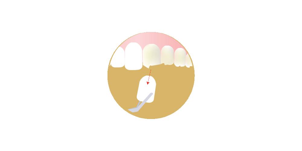 Dantų laminatės - Oksdenta