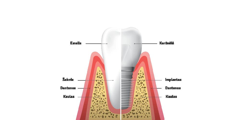Oksdenta - Implantacija
