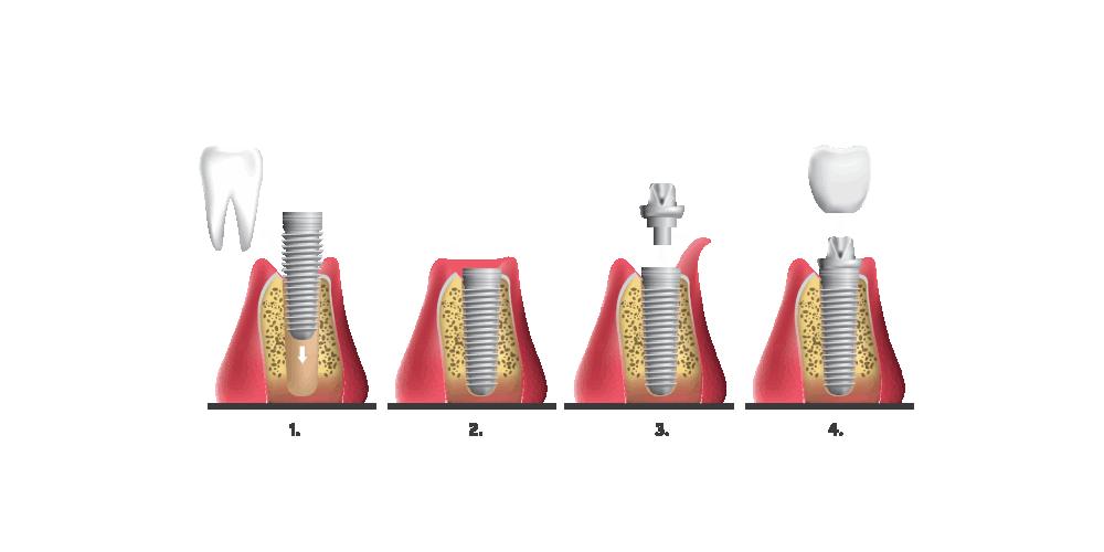 Vienmomentės dantų implantacijos etapai